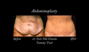 blog-abdominoplasty-photo-1-300x177
