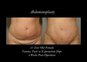 blog-abdominoplasty-photo-2-300x214