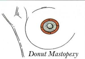 blog-donut-mastopexy-diagra2-300x207