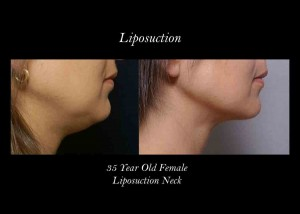 blog-liposuction-photo-neck-300x214