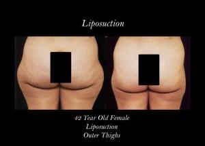 blog-liposuction-photo-thig3-300x214