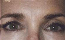 brow-a2