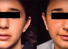 13 Year Old Female Ear Surgery