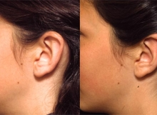13 Year Old Female Ear Surgery-Side
