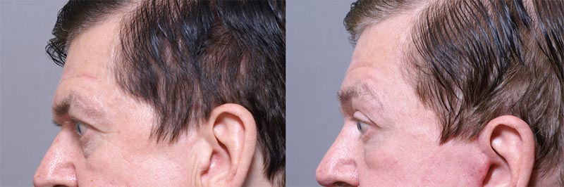60 Year Old Male 5 Weeks Post-Operative Browlift-Side