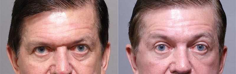 60 Year Old Male 5 Weeks Post-Operative Browlift