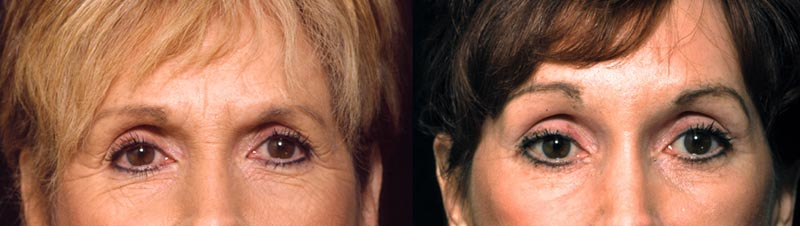 61 Year Old Female Browlift Lower Eyelid Surgery