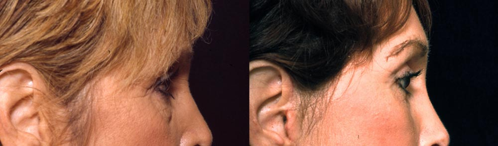 61 Year Old Female Lower Eyelid Surgery Browlift-Side
