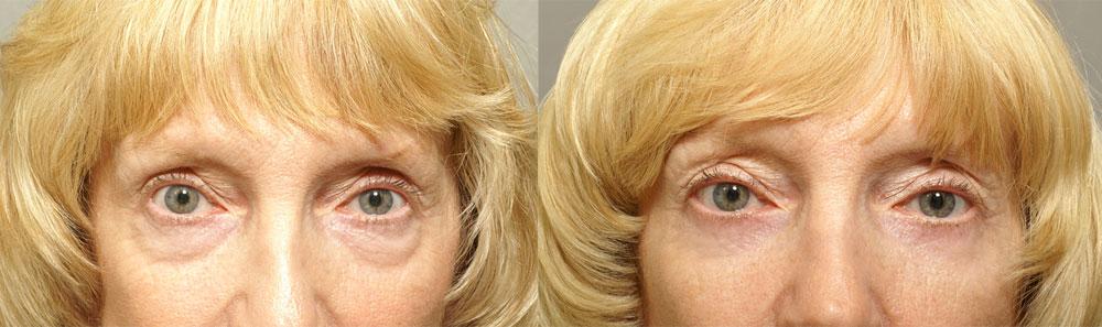 63 year old Female - Lower Eyelid Surgery