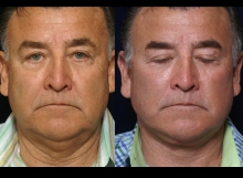 65 Year Old Male 3 Months Post-Operative Facelift