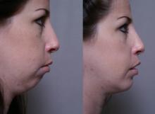 side chin