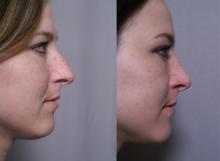 side nose